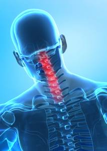 cervical-spine-whiplash